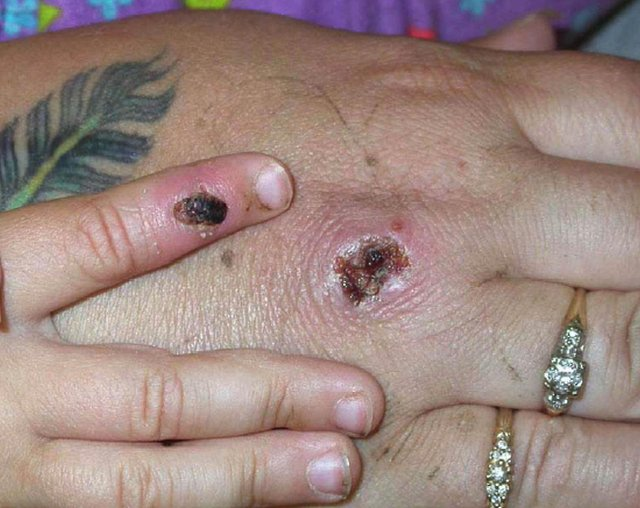 Two cases of Monkeypox have been confirmed in the UK. Photo Courtesy of CDC/Getty Images