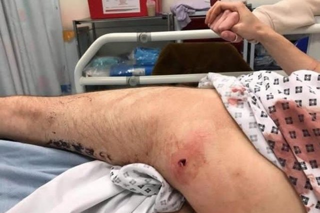 A 23-year-old man was shot in the left leg at a house in Hudson Road, Somers Town in Portsmouth, on February 3 in 2019. He has since been told the investigation has been filed.